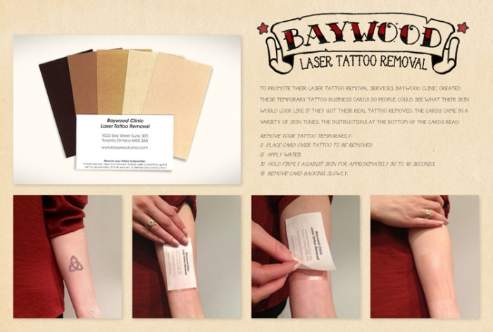baywood-clinic-laser-tattoo-removal